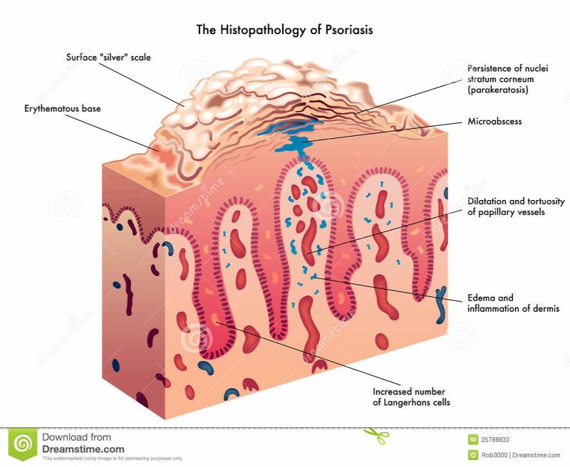 SANDIMMUN NEORAL mg/ml belsőleges oldat