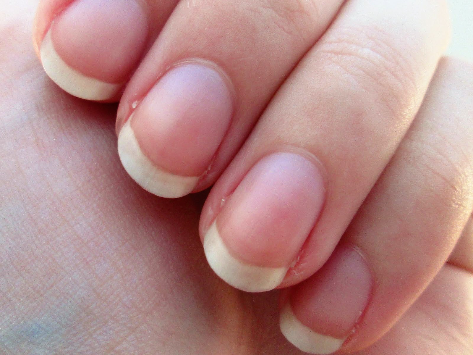 domború vörös folt jelent meg a kézen folyékony nitrogén kezelés pikkelysömörhöz