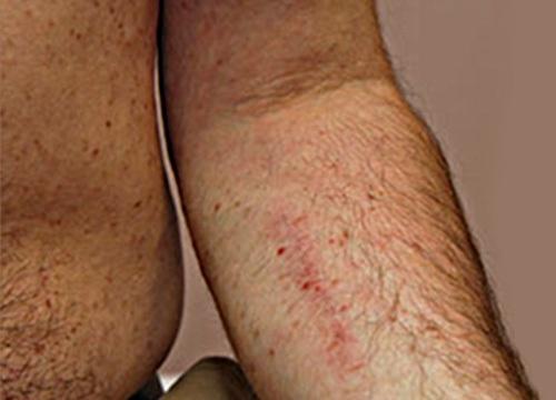 korai stádiumú pikkelysömör kezelése vörös foltok. láb