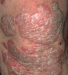 gyakori exudatív pikkelysömör kezelés)