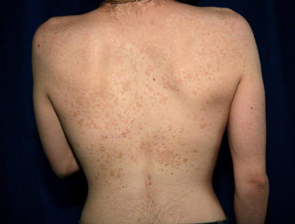 clotrimazole pikkelysömör kezelése