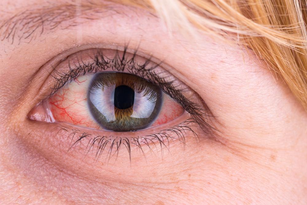 a jobb szem alatti vörös folt viszket