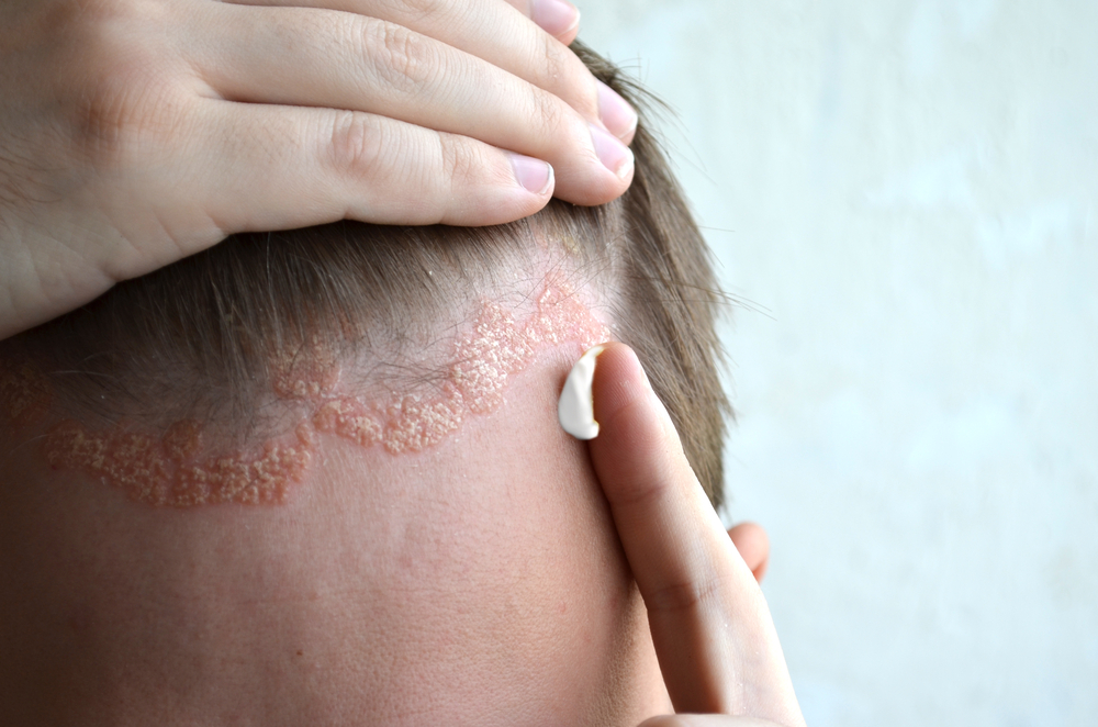 miért mosás után az arc vörös foltokkal borul pikkelysömör kezelésére like
