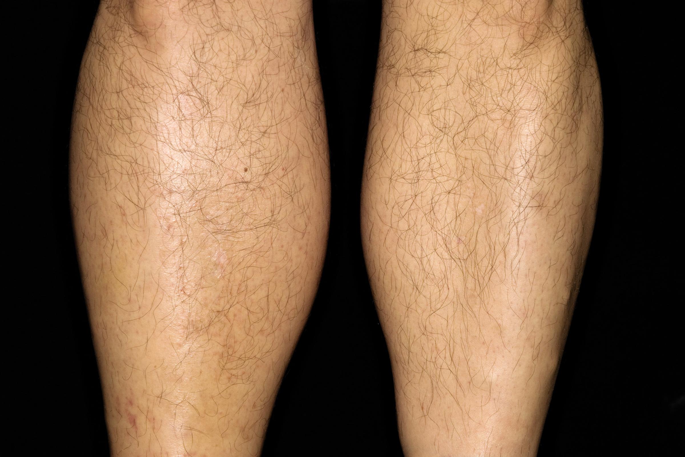 lábfájdalom és vörös folt