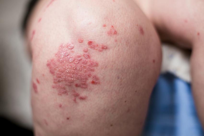 Psoriasis kezelés kerala shakeela