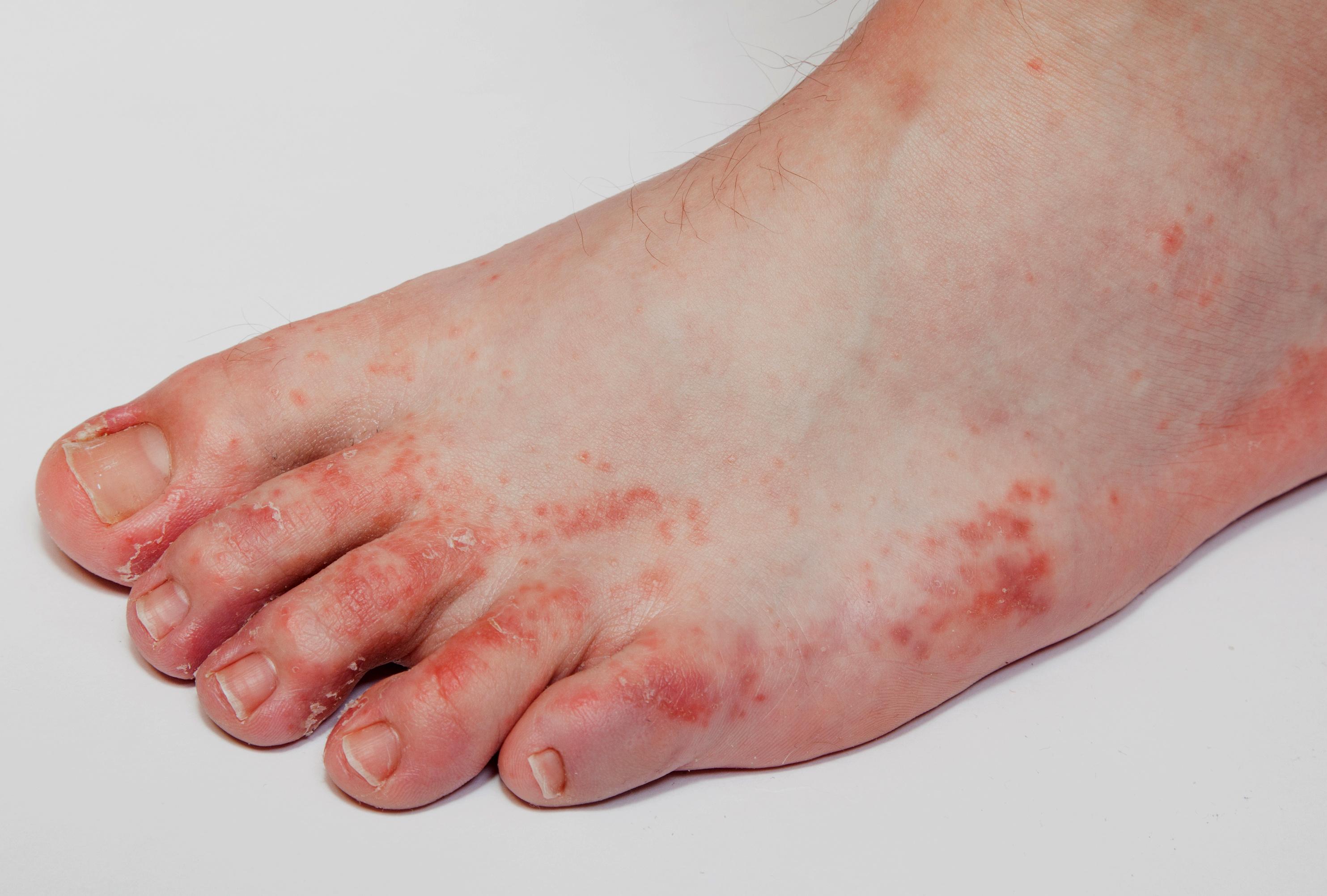a lábán vörös folt hámlik és viszket