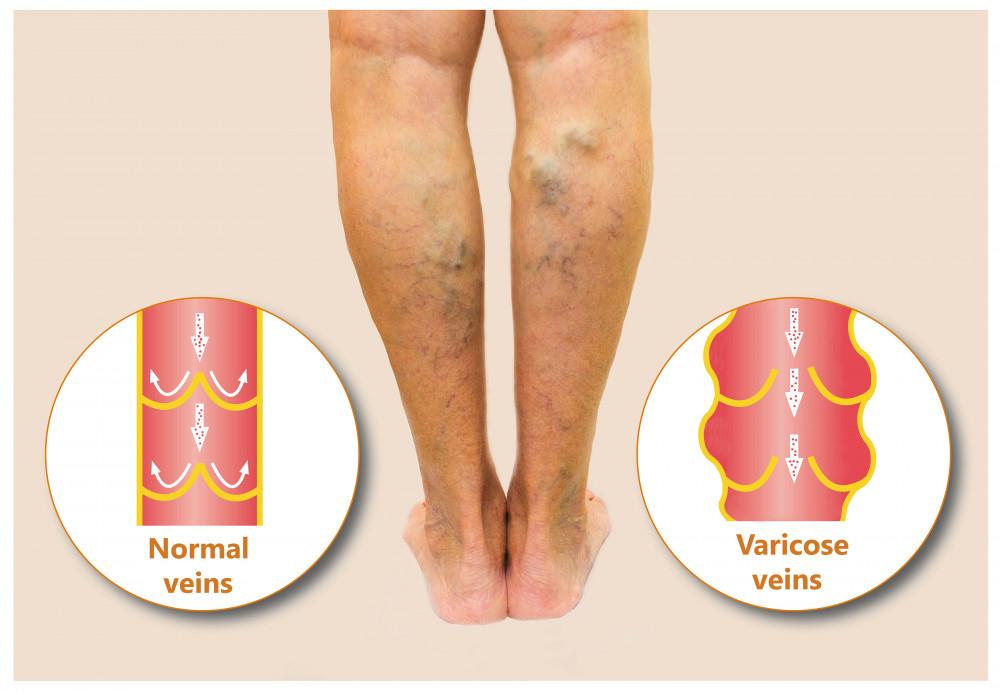 a lábán piros foltok fájnak nagy vörös foltok jelentek meg a testen viszketve