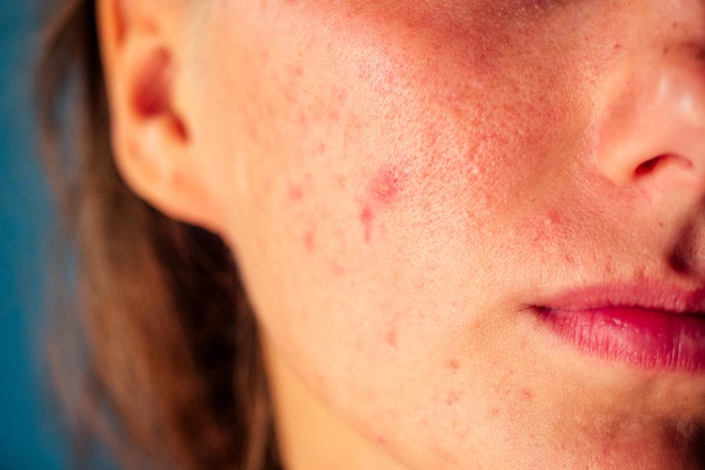 ha az arc bőrét vörös foltok borítják)