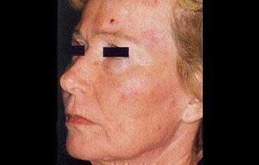 az arcán vörös folt hámlik)