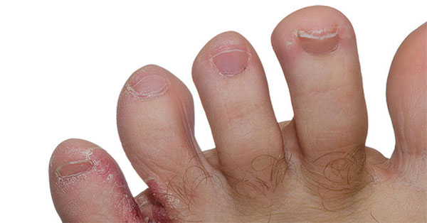 piros kerek folt a kezén viszket