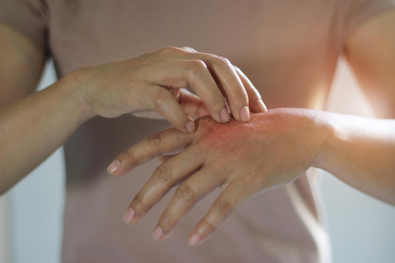 pikkelysömör kezelése exacerbáció esetén