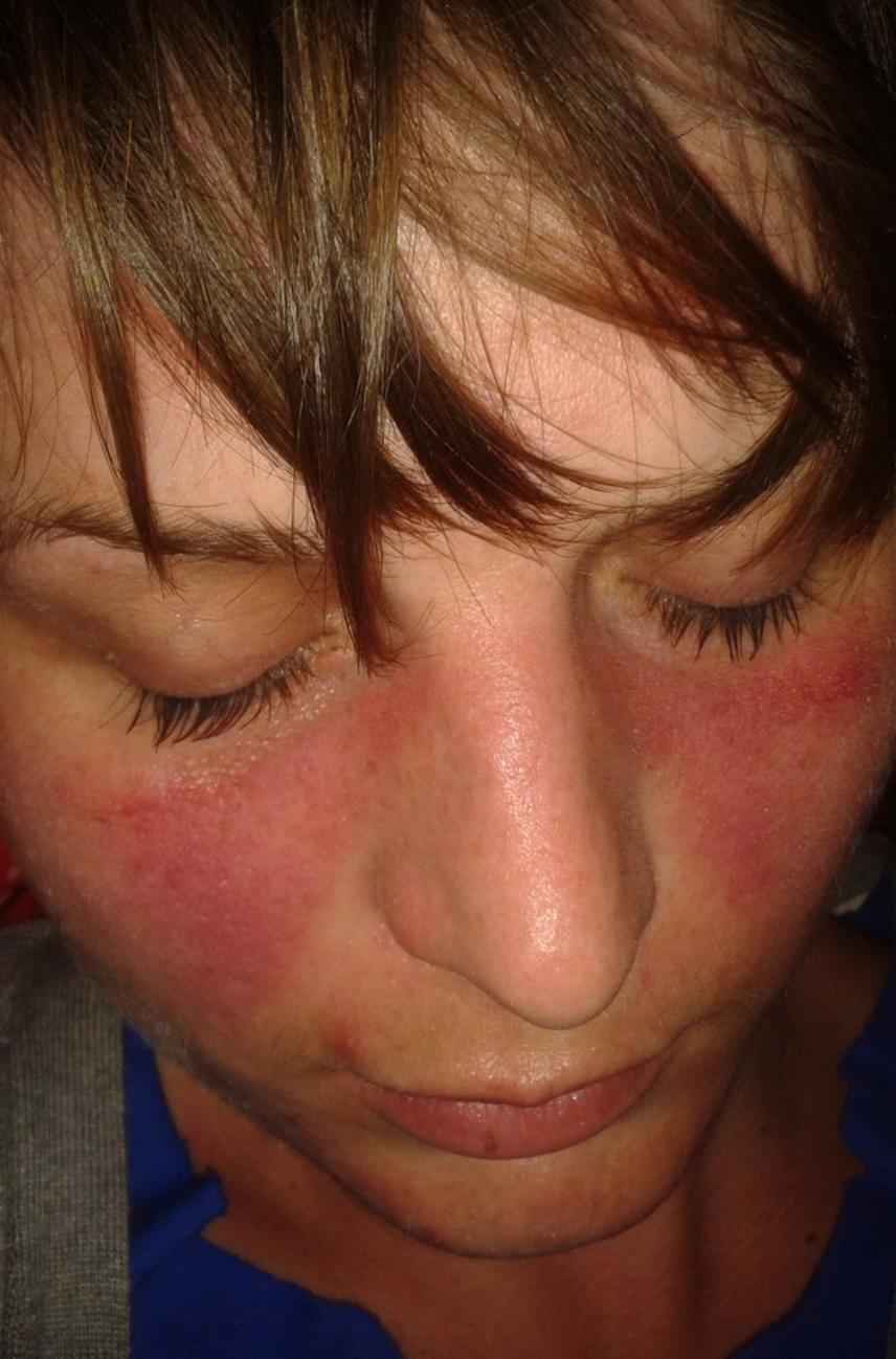 egy nagy vörös folt az arcon)
