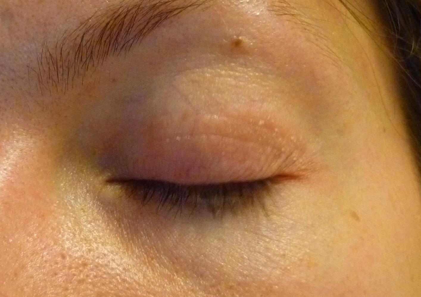 stelara pikkelysömör gyógyszer az arcon pikkelysömör hogyan kell kezelni
