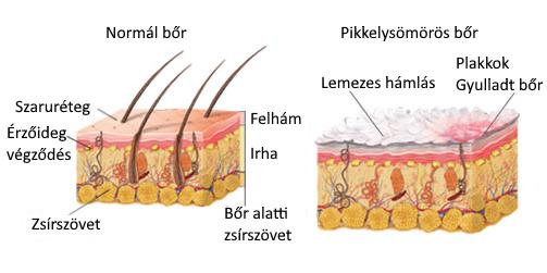 kontakt pikkelysömör kezelése)