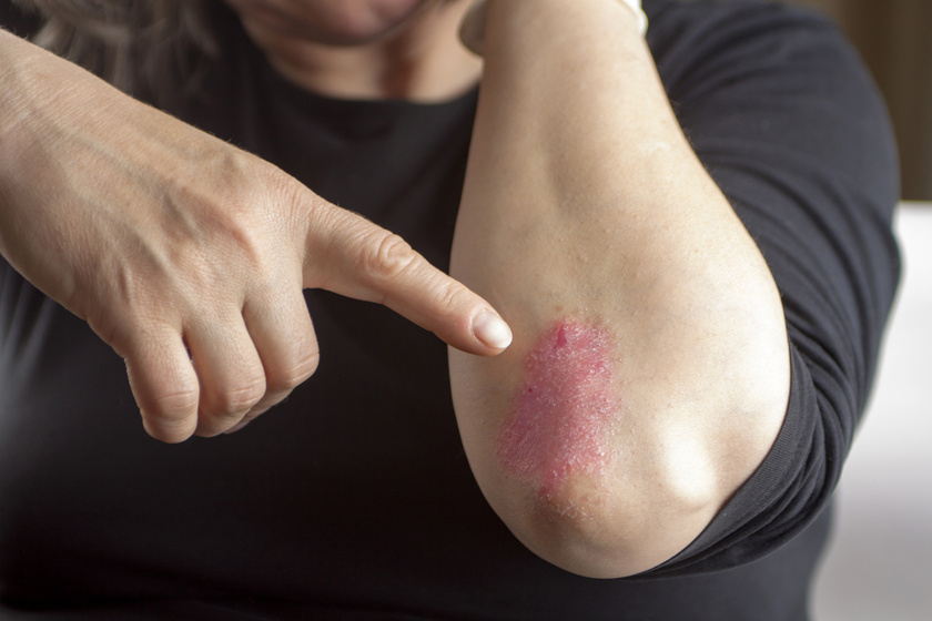 runner anatoly pikkelysömör kezelése