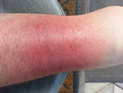 vörös foltok a visszéren a lábakon