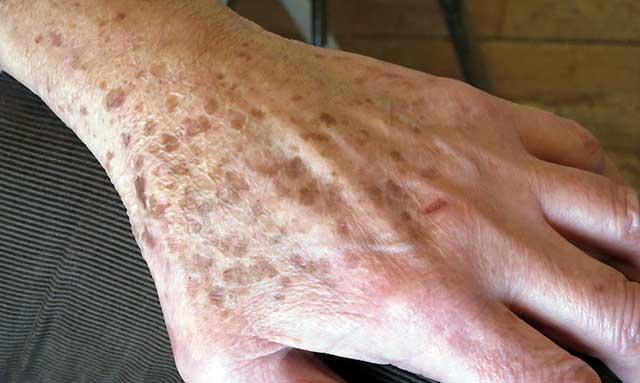 kézbőr psoriasis kezelése kecsketej kezeli a pikkelysmr