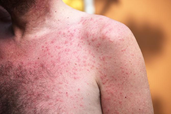 vörös foltokat okoznak a testen viszketni
