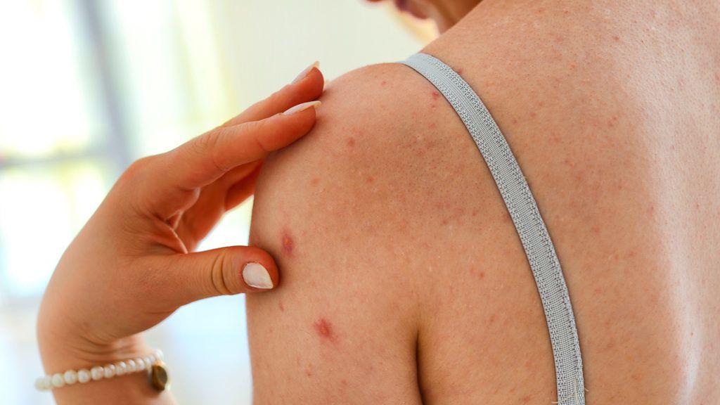 pikkelysömör és a hagyományos orvoslás kezelései