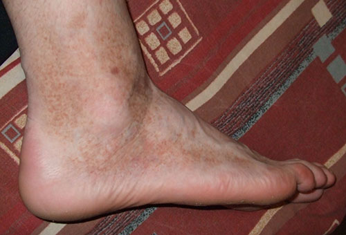 miért vannak piros foltokban a lábak)