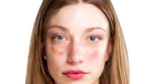 vörös pikkelyes foltok az ügy arcán)