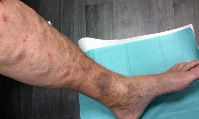 vörös foltok és sebek a lábakon)