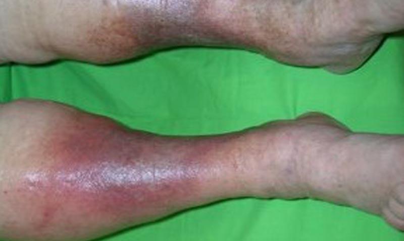 vörös foltok a lábakon vénás betegség