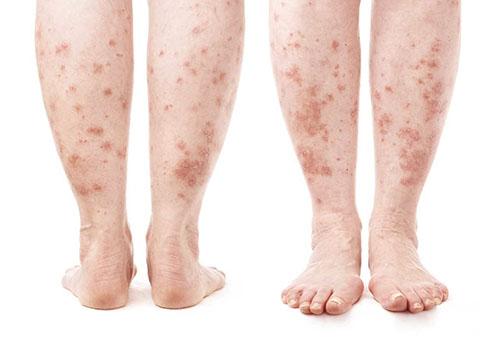 a lábakat vörös foltok borítják és duzzadtak)