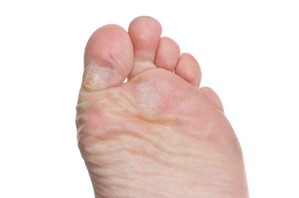 vörös foltok a lábujjak között a lábujjak között