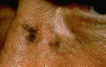 veleszületett vörös folt az arcfotón pikkelysömör psoriasis kezelése népi gyógymódokkal