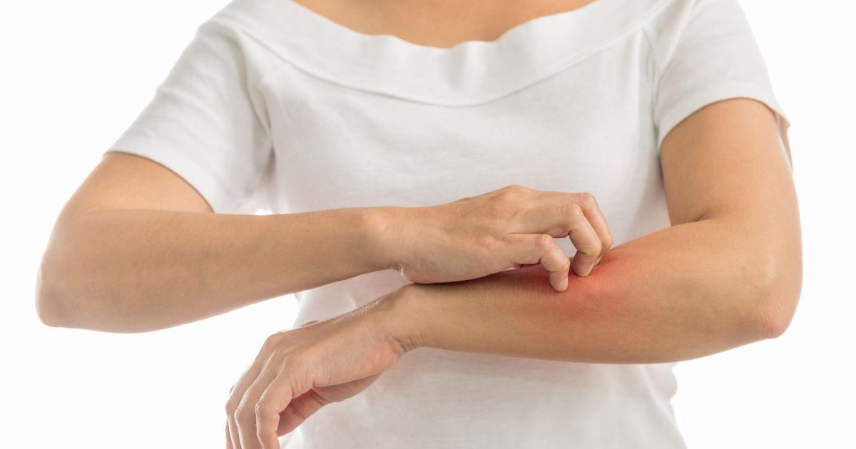 a lábakon vörös foltokat viszkető tünetek