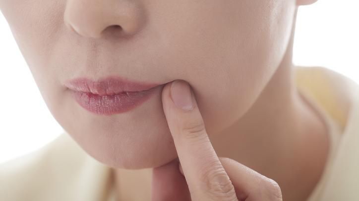 vörös folt az ajkán hogyan kell kezelni)
