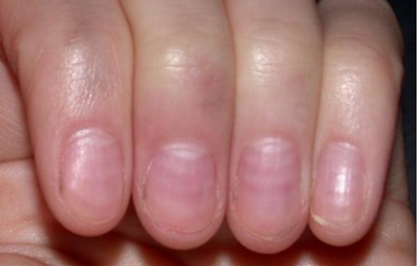Miről árulkodik a bőr?