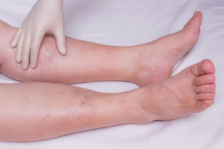 piros, duzzadt folt a lábán