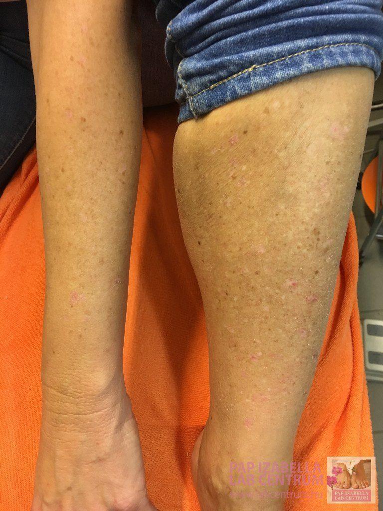 hogyan lehet gyógyítani a láb pikkelysömörét