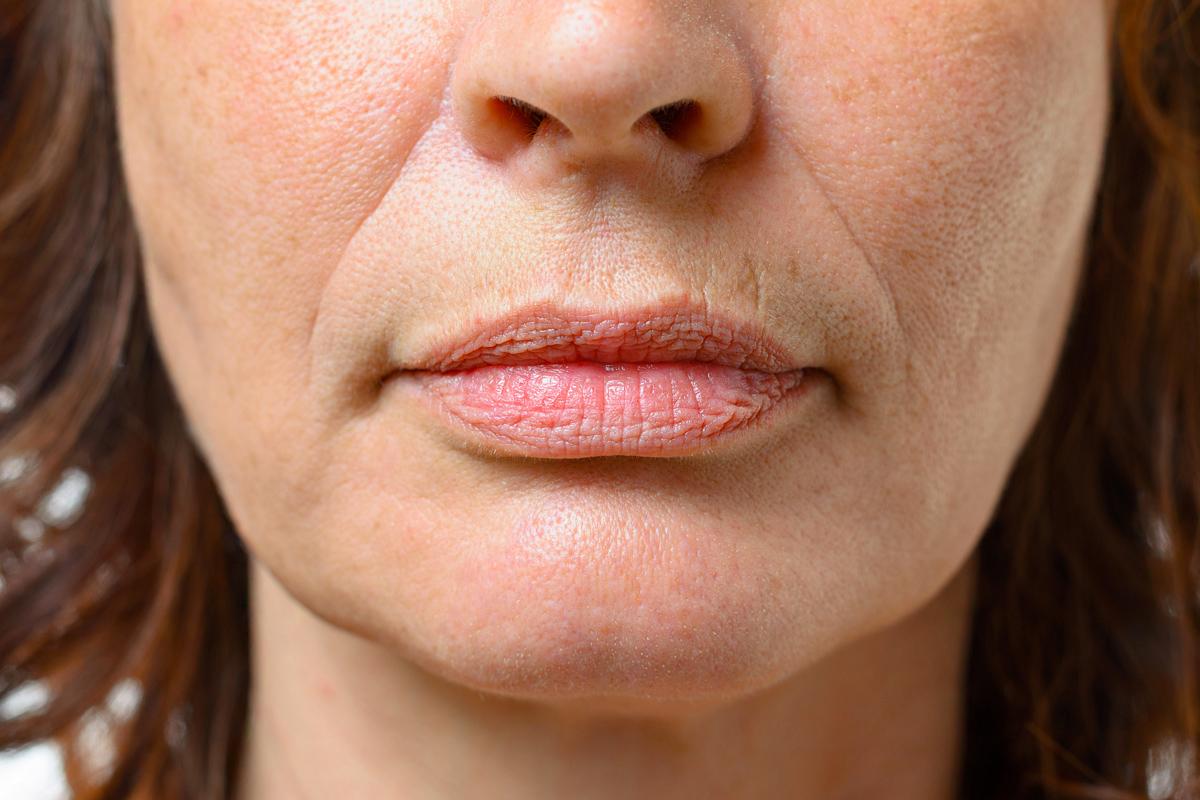 Hámló arcbőr – Ez állhat mögötte   BENU Gyógyszertárak