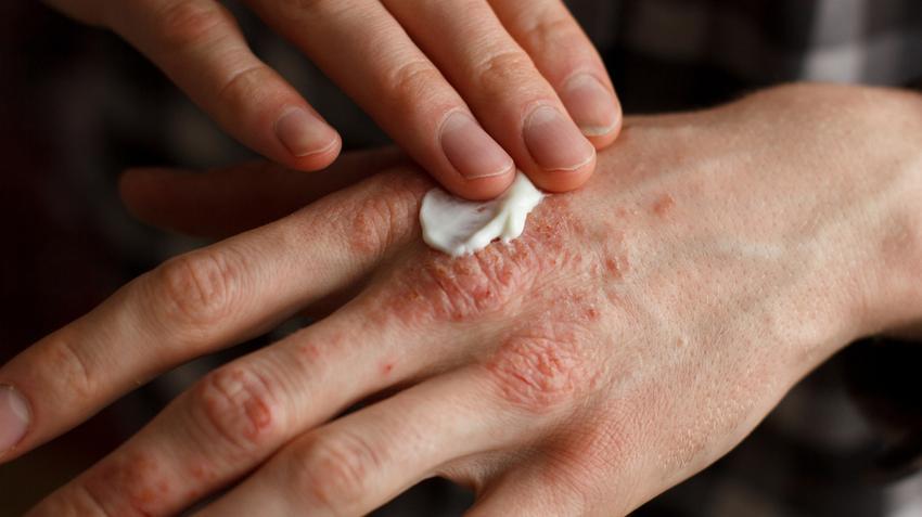 Troitsk pikkelysömör kezelése kiütés vörös foltok formájában a lábakon, viszketés nélkül egy felnőttnél