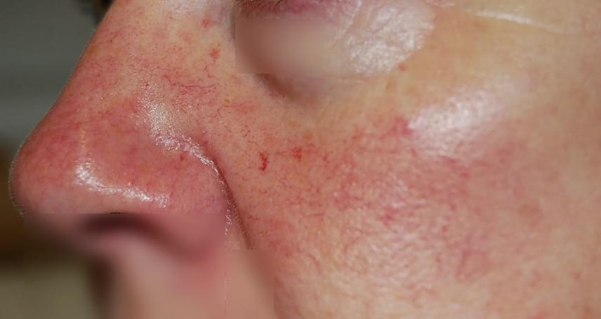 az orr alatt piros folt viszket