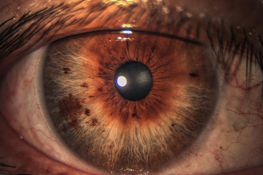 a felső szemhéjon egy vörös folt a lehámláshoz