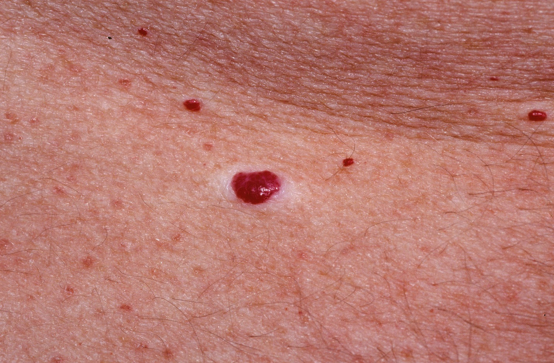 hogyan lehet eltávolítani a vörös foltokat a testen otthon milyen gyógymódok vannak a pikkelysmr ellen