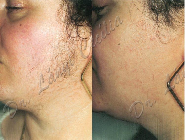 Így kerüld el a bőrirritációt a szőrtelenítésnél