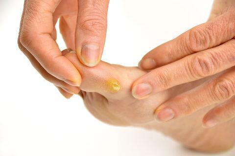 Pikkelysömörös bőr kozmetikai kezelése