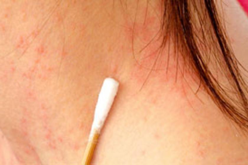 a bőrt vörös foltok és hólyagok borítják)