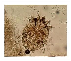 seborrheás pikkelysömör az arcon kenőcs kezelés milyen olajok kezelik a pikkelysmr