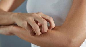 a pikkelysömör kezelése az ájurvéda szerint pikkelysömör ápoló anyánál