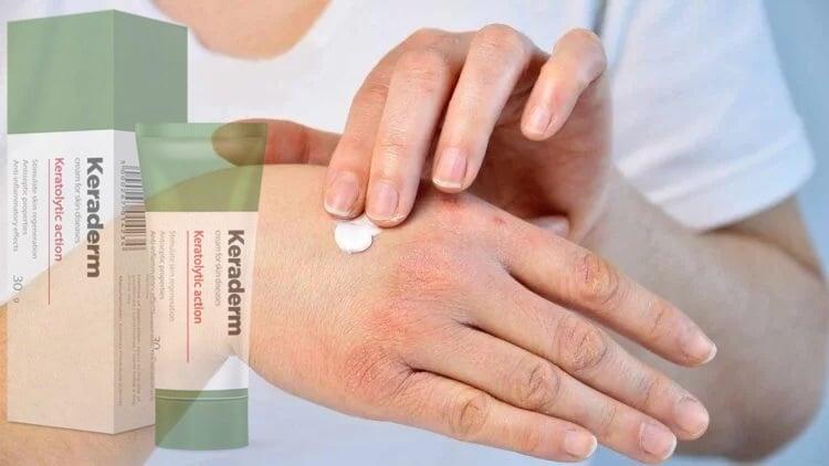 a psoriasis krémek áttekintése)