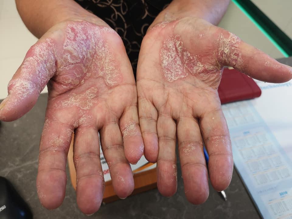 vörös folt és száraz a kezén
