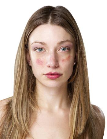 az arcbőr hámlik és vörös foltok vannak