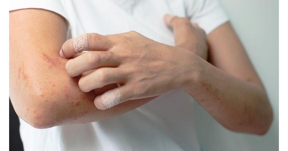 pikkelysömör utáni hegek kezelése gyógyító pikkelysömör kezelésére