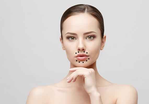 Piros pöttyök az arcon!? 22 - Bőrbetegségek